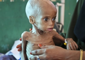 Acutely malnourished child Sacdiyo Mohamed, 9 months old, is treated at Banadir hospital in Somalia on Saturday. Somalia's government has declared the drought there a national disaster. Mohamed Sheikh Nor/AP